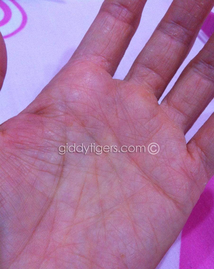 eczema6