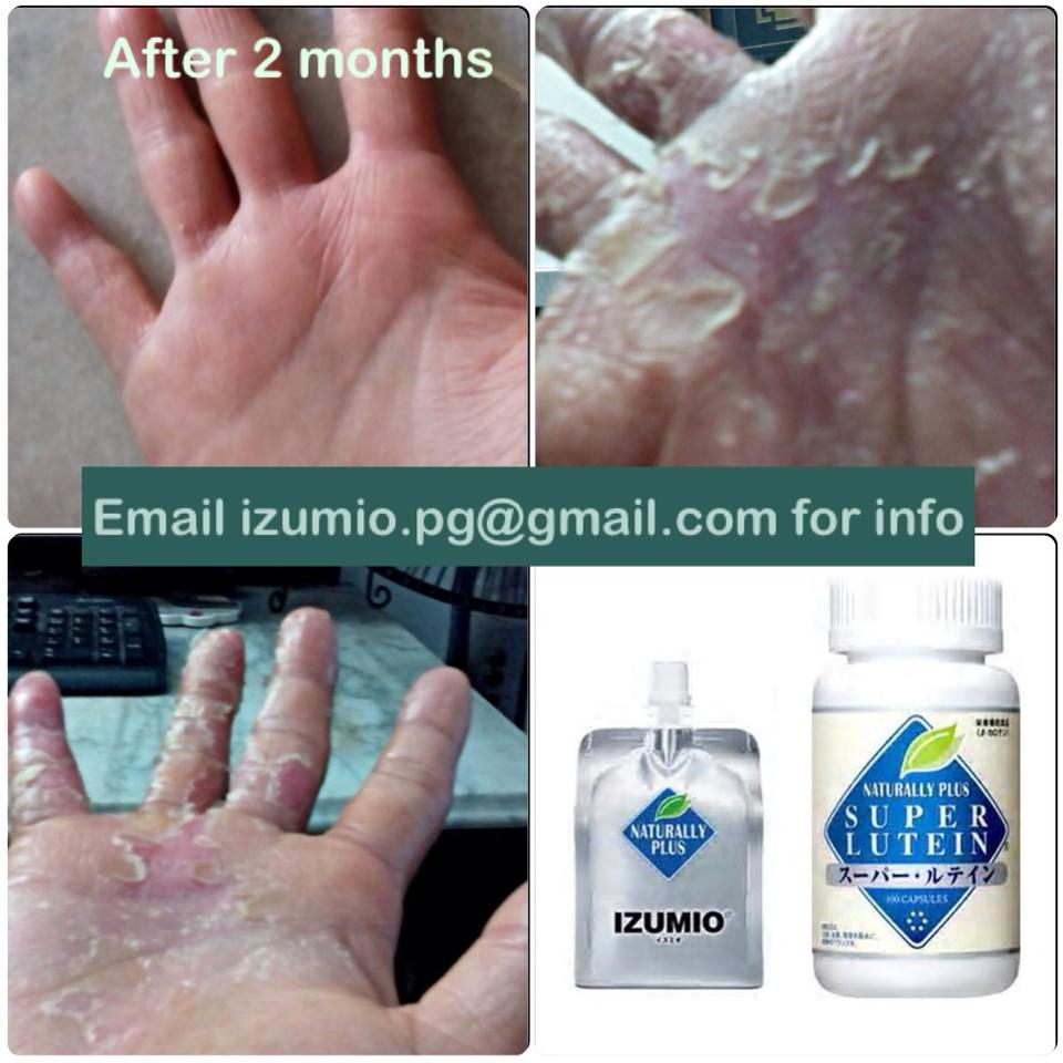 eczema-imp