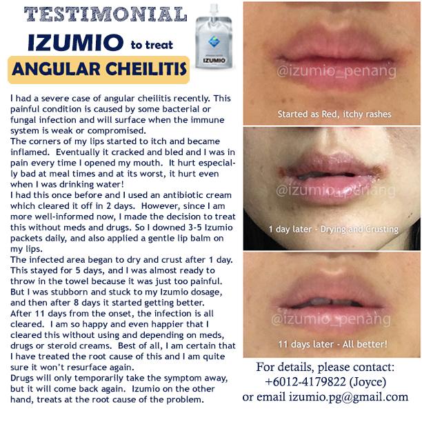 testimonial-angularcheilitis